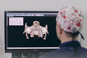 Radiografía panorámica u escáner 3D