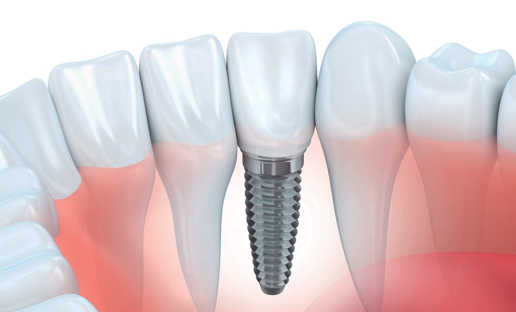 implante-dental-ilustración.png
